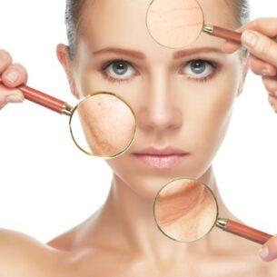 Gratis konsultation – ansigtsbehandling / hudsygdomme